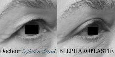 Blépharoplastie - Cliché avant - Dr Sylvain David