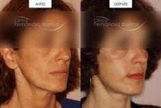 Lipotransferencia de grasa (lipofiling) - Lipofilling de mejillas