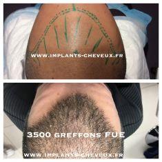 Greffe de cheveux - Cliché avant - Dr AMAT - ????Greffe FUE 2.0 Medic Xpert