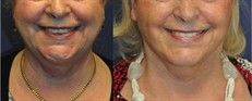 Facelift - Photo before - Mr. Marc Pacifico M.D.