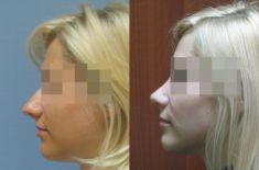Korekcja nosa (Operacja nosa) - Zdjęcie przed - Dr Szczyt Klinika Chirurgii Plastycznej