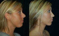 Operácia nosa (Rhinoplastika) - Fotka pred - MUDr. Barbora Brezová PhD.