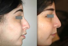 Non-Surgical Nose Job - Photo before - Dr Jacques Buis
