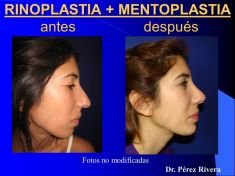 Cirugía de la nariz (Rinoplastia) - Foto Antes de - Dr. Fabian Peréz Rivera