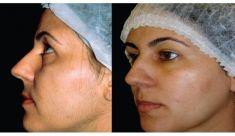 Fotoepilace (IPL) - fotka před - Body laser Esthetics