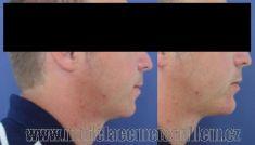 Obličejové implantáty - fotka před - MUDr. Jana Vybulková Zavadilová