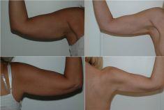Liposuzione - Foto del prima - Dott. Gianluca Campiglio