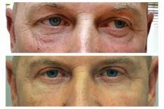 Operace očních víček (Blefaroplastika) - MUŽ, 52 LET, PLASTICKÁ OPERACE HORNÍCH A DOLNÍCH VÍČEK