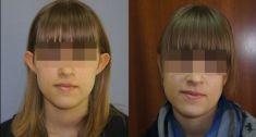 Korekcja uszu (Otoplastyka) - Zdjęcie przed - Dr Szczyt Klinika Chirurgii Plastycznej