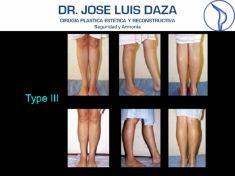 Dr. Jose Luis Daza Flores - Photo before - Dr. Jose Luis Daza Flores