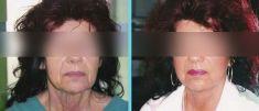 Facelift, Lifting twarzy (podciąganie powłok twarzy) - Zdjęcie przed - Chirurgia Plastyczna E.A. Barańscy