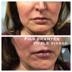 Dr AMAT - ????Greffe FUE 2.0 Medic Xpert - Séance HIFU ovale du visage 1 mois avant la pose de fils crantés 2 fils X 2 fils sculptra