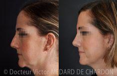 Génioplastie - Chirurgie esthétique du menton - Génioplastie par chirurgie uniquement des parties molles sans ostéotomie pour correction d