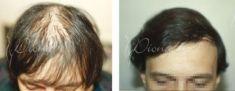 Presađivanje kose  - Fotografija prije - Violeta Skorobać Asanin MD, PhD