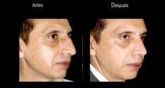 Dr. Felipe Amaya - Foto Antes de - Dr. Felipe Amaya