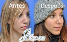 Dr. Jorge Aso - Foto Antes de - Dr. Jorge Aso