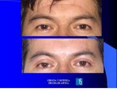 Cirugía de párpados (Blefaroplastia) - Foto Antes de - Dr. Luis Pavajeau Muñoz