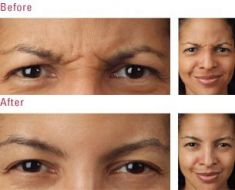 Botulinum toxin - Wrinkle Removal - Photo before - Marc J. Salzman, MD.