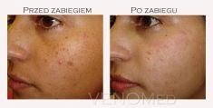 Fotoodmładzanie / odmładzanie skóry - Zdjęcie przed - Centrum Medyczne VENO-MED Jendrysik, Kiełek