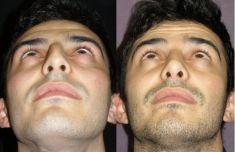 Rinoplastica - La punta è ora meglio sostenuta e più armonica. La cicatrice alla columella non è più visibile.