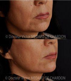 Génioplastie - Chirurgie esthétique du menton - Injection du menton (Acide hyaluronique)
