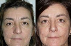 """Rinoplastica - Le linee estetiche del dorso sono state ripristinate con osteotomie asimmetriche delle ossa nasali ed impiego di innesti tipo """"spreader grafts"""" , anch'essi asimmetrici, provenienti dal setto."""