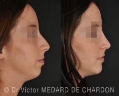 Rhinoplastie - Ostéotomie mandibulaire avec avancée de 5mm et fixation par microplaque et vis. Rhinoplastie dans le même temps réalisant une profiloplastie