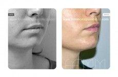 Aumento de labios (lipofilling) - Foto Antes de