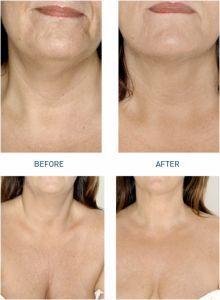 Mezoterapia (revitalizácia tváre, krku, dekoltu, rúk)  - Fotka pred - MUDr. Kitti Máčadiová