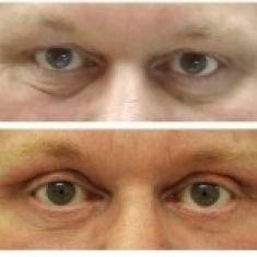 Operace očních víček (Blefaroplastika) - MUŽ, 50 LET, PLASTICKÁ OPERACE HORNÍCH A DOLNÍCH VÍČEK