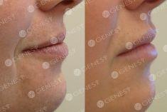 Aumento labbra - Foto del prima - Dott. Fabio Chemello CENTRO MEDICO GENESY
