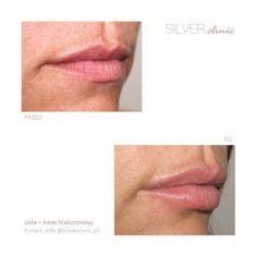 Powiększanie ust kwasem hialuronowym - Zdjęcie przed - dr Adam Srebrzyński - Silver Clinic