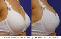 Zvětšení prsou (Augmentace) - fotka před - MUDr. Jana Vybulková Zavadilová
