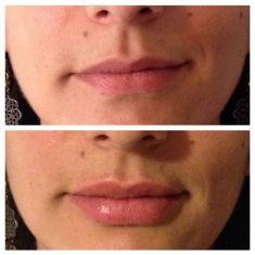 Aumento labbra - Foto del prima - Dott. Andrea Armenti MD, FEBOPRAS