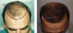 Hair Transplant - Photo before - Violeta Skorobać Asanin MD, PhD
