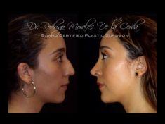 Rhinoplasty (Nose Job) - Photo before - Dr. Rodrigo Morales De la Cerda