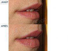 Augmentation des lèvres - Cliché avant - Dr Cédric Kron