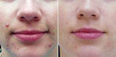 Léčba akné - fotka před - Brandeis Clinic by Lucie Kalinová