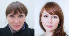 Liquid facelift - Photo before
