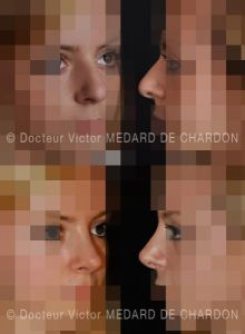 Rhinoplastie - Cliché avant - Docteur Victor Medard de Chardon