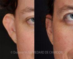 Otoplastie (Chirurgie esthétique des oreilles) - Cliché avant - Docteur Victor Medard de Chardon