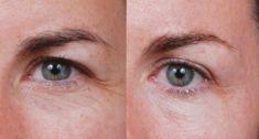 Operácia očných viečok (Blepharoplastika) - Fotka pred - Klinika YES VISAGE - klinika estetickej medicíny a plastickej chirurgie