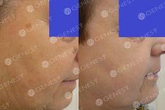 Procedure laser in dermatologia estetica  - Foto del prima - Dott. Fabio Chemello CENTRO MEDICO GENESY