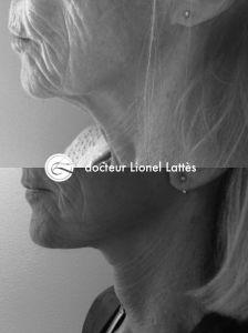 Dr Lionel Lattès - Cliché avant - Dr Lionel Lattès