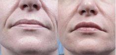 Lifting tváří - fotka před - ARTMED Klinika estetické a laserové dermatologie