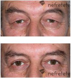 Korekcja powiek (Blepharoplastyka) - Zdjęcie przed - dr n. med. Małgorzata Kot