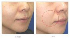 Mezoterapia (revitalizácia tváre, krku, dekoltu, rúk)  - Fotka pred - Klinika YES VISAGE - klinika estetickej medicíny a plastickej chirurgie