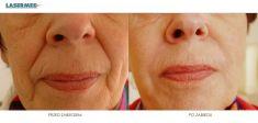 Kwas hialuronowy: Saypha, Restylane, Juvederm, Stylage - Zdjęcie przed - LASERMED Centrum Dermatologii Laserowej