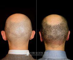 Operazione orecchie (Otoplastica) - Otoplastica eseguita dal Dott. Ikenna Valentine Aboh