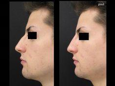 Rinoplastica non chirurgica - Foto del prima - Dott. Aurelio M. Cardaci